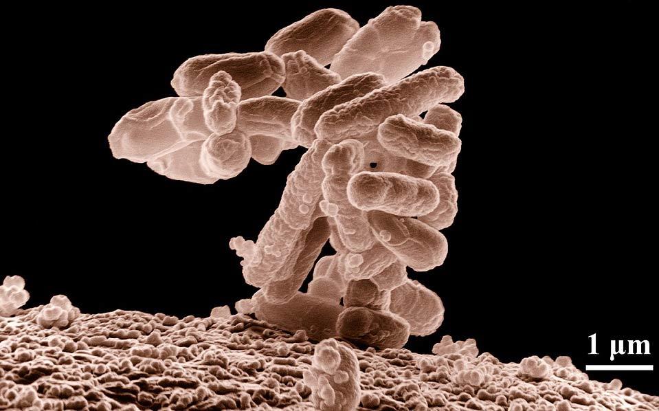 Escheria Coli Bakterien Infektion